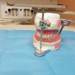 Prothèse dentaire, une excellente alternative pour retrouver le sourire